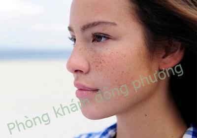 Làm thế nào để chị em nhận biết mình bị bệnh nám da?