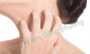 Bệnh ngứa da không nên xem nhẹ-2