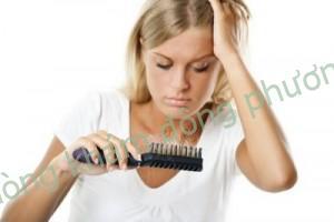 Rụng tóc từng vùng ở phụ nữ