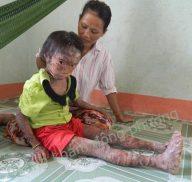 bệnh vảy cá ở trẻ em