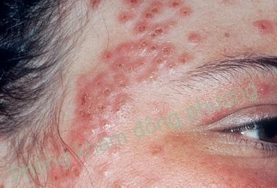 bệnh viêm da cơ địa có khỏi được không
