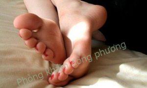 Bị bệnh cước chân