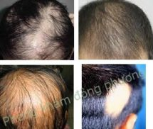 Chữa bệnh rụng tóc từng mảng