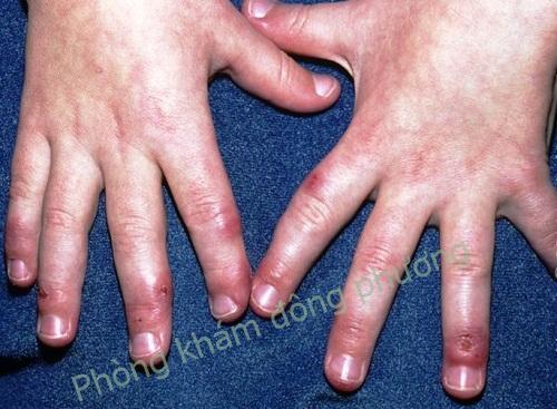 Bệnh cước tay là Bệnh gì? Làm sao để chữa cước tay
