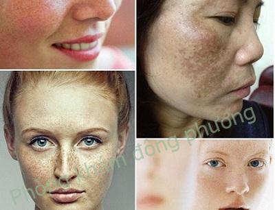 Đồi mồi trên da, nám da và tàn nhang phân biệt thế nào