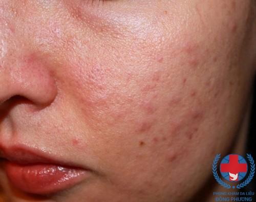 Dị ứng da nguyên nhân và cách điều trị hiệu quả nhất