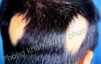 nguyên nhân gây rụng tóc từng vùng
