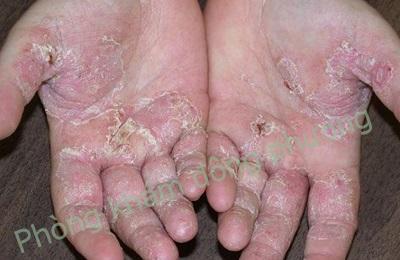 bệnh viêm da