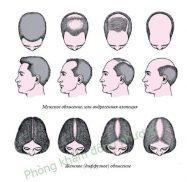 Rụng tóc từng mảng là gì