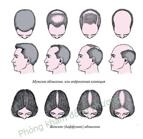 Rụng tóc từng mảng là gì? Nguyên nhân và cách chữa