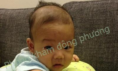 Rụng tóc từng vùng ở trẻ sơ sinh có đáng lo không?