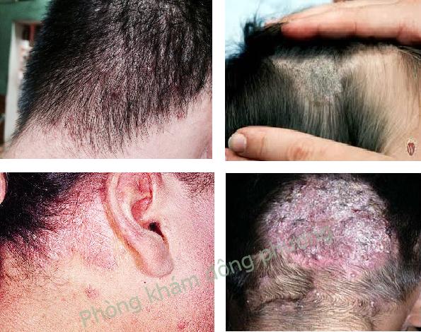 Tác hại của bệnh nấm đầu