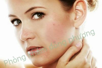 Đâu là những triệu chứng bệnh dị ứng da?