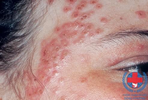 Viêm da là gì cách chữa viêm da hiệu quả nhất