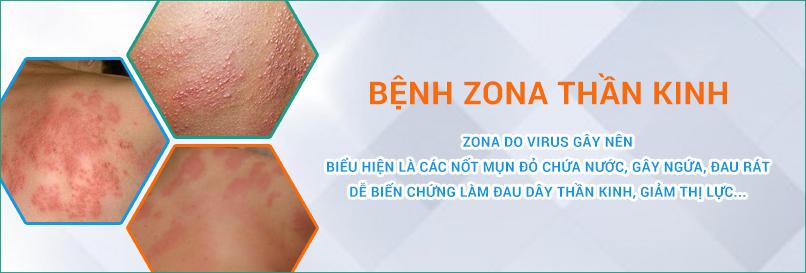 Bệnh Zona thần kinh do virus Varicella-Zoster gây ra