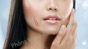 điều trị sẹo lồi ở nữ giới
