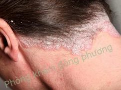 vảy nến da đầu