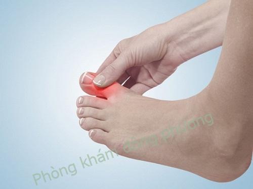 Ngón chân bị sưng đỏ và bị đau có phải là dấu hiệu bệnh cước