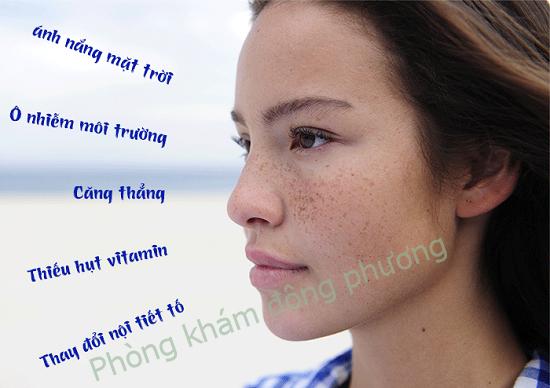 Trong đời sống sinh hoạt cần làm gì để làm mờ nám da