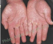 nấm da tay