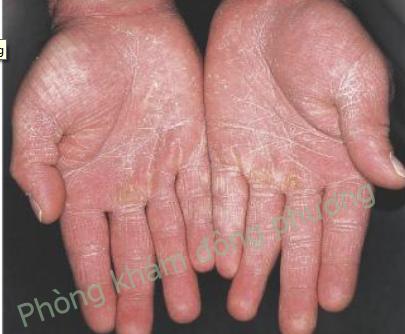 Nấm da tay và cách điều trị nấm da tay hiệu quả
