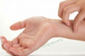 Hướng dẫn cách chữa ngứa lòng bàn tay
