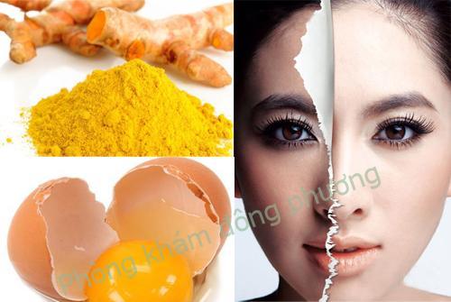 8 cách trị nám da bằng trứng gà