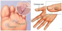 Cách điều trị mụn cơm mềm dứt điểm