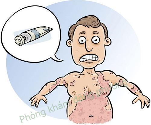 Nguyên nhân dị ứng hóa chất