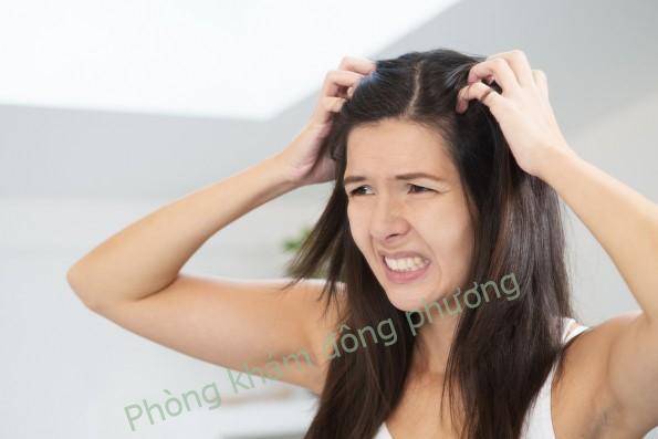 điều trị vảy nến da đầu