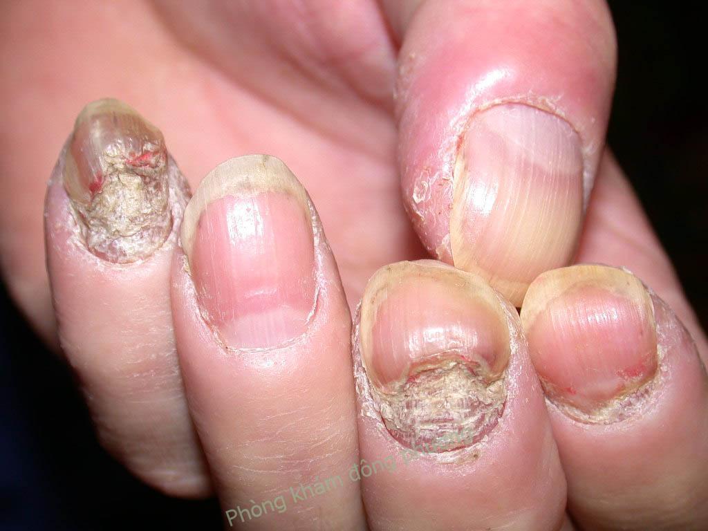 Vảy nến móng tay điều trị sao cho đúng