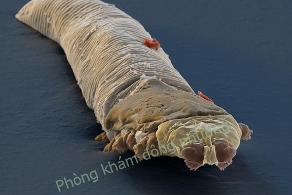 viêm da demodex