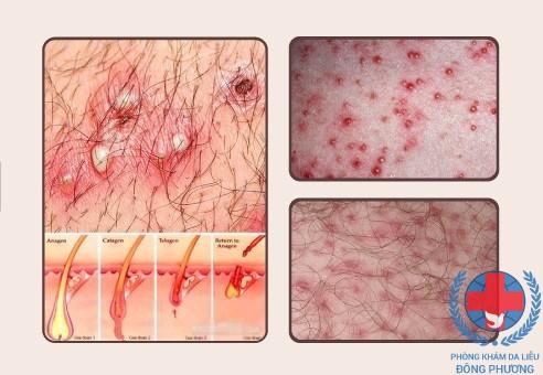 Bệnh chàm nang lông những điều cần biết