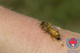 Dị ứng côn trùng gây khó chịu cho người bệnh