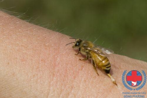 Dị ứng côn trùng những kinh nghiệm trong điều trị căn bệnh này