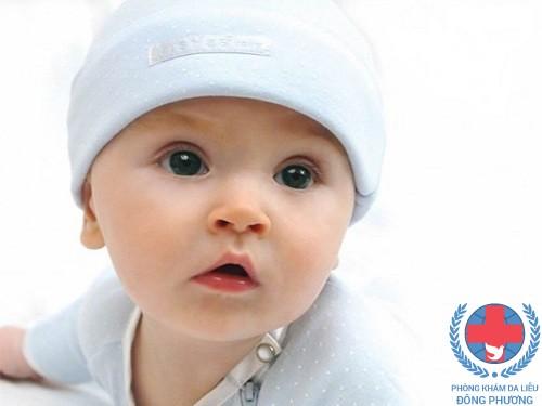 Dị ứng da ở trẻ em