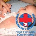 Ngứa da ở trẻ em những mẹo chữa hay mẹ nên biết