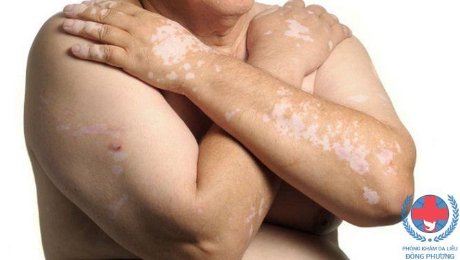 bệnh bạch biến có di truyền không