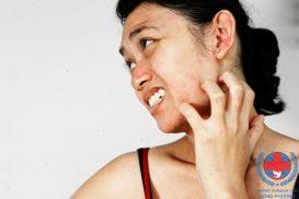 viêm da thể tạng là gì