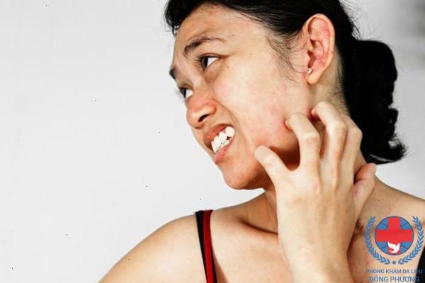 Viêm da thể tạng là gì và cách điều trị viêm da thể tạng?