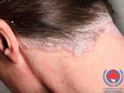 Bệnh chàm da đầu là gì ? Nên làm gì khi bị chàm da đầu ?