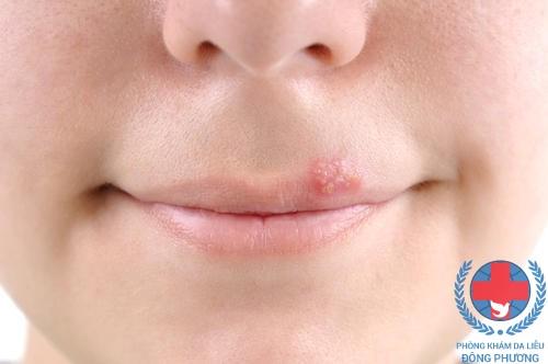 Zona thần kinh ở môi những mẹo hay giúp bạn giải quyết