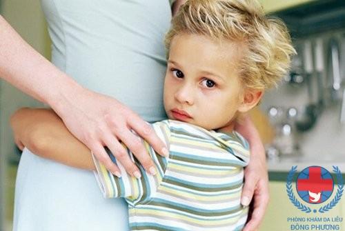 Bệnh chàm có di truyền không hãy cùng đi tìm lời giải