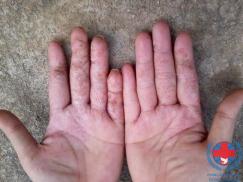 Bệnh chàm đối xứng có những nguyên nhân gì ?