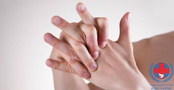 Bệnh tổ đỉa dẫn tới ngứa kẽ bàn tay
