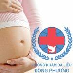 Bệnh ngứa khi mang thai phải điều trị như thế nào ?