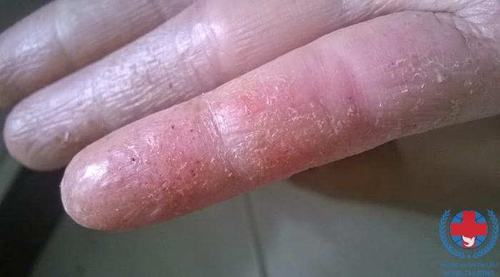 Bệnh chàm đầu chi điển hình nhất là chàm đầu ngón tay