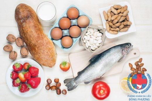 Bệnh ngứa ở lòng bàn chân do dị ứng với thức ăn