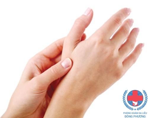 Bệnh ngứa kẽ bàn tay có nguyên nhân do đâu ?