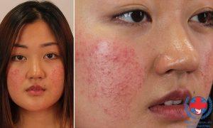 Thông tin về bệnh chàm da mỡ